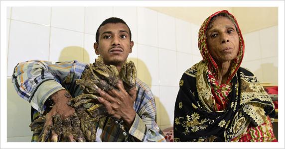 Bangladesh: un «homme-arbre» aux excroissances impressionnantes opéré