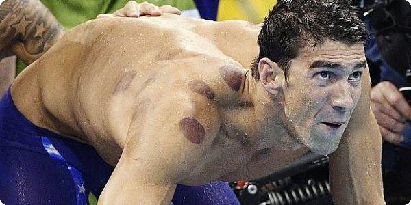 Le mystère des taches sur le dos de Michael Phelps